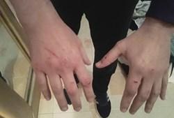 Mãos do PSP. Agente alega que foi agredido e empurrado durante detenção