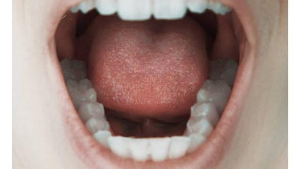 Retirar gordura da língua pode tratar apneia do sono. Descubra porquê