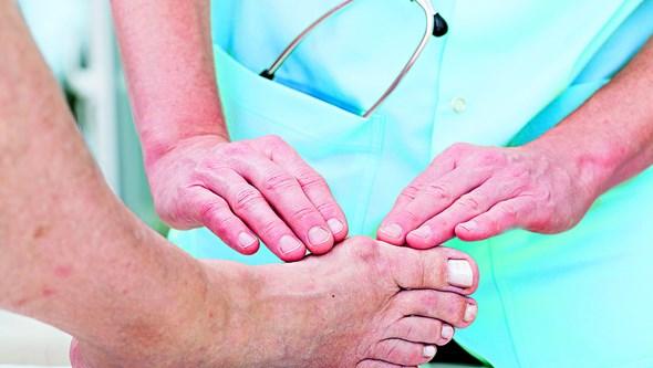 Joanetes provocam dor ao caminhar e alterações nas articulações dos pés