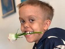 Menino que implorou pela morte após ser alvo de bullying volta a sorrir. Mundo envia mensagens de solidariedade