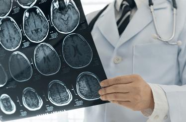 O diagnóstico de doenças do foro neurológico