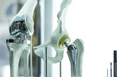 Dor no joelho: um problema frequente agora com tratamento personalizado