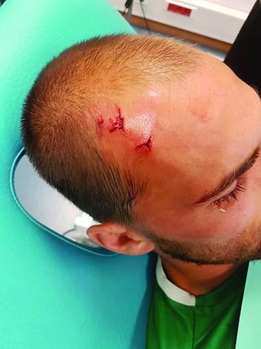 Bas Dost ficou magoado na cabeça e teve de levar pontos