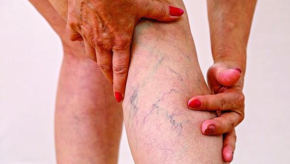 Varizes: Conheça os sintomas e o tratamento para as veias dilatadas