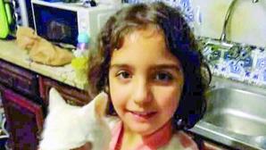 O horror de Valentina: Violência da primeira agressão provocou o descolamento do crânio
