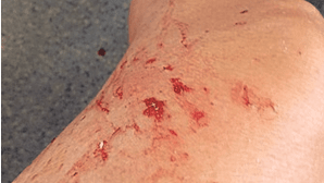 Pedrada em comboio fere passageira na perna e braço