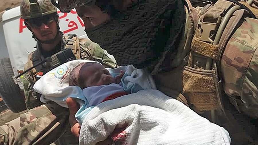 Bebé sobrevive após ser baleado duas vezes durante massacre em maternidade no Afeganistão