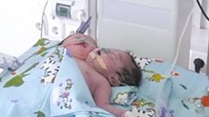 Mãe tem bebé com duas cabeças e é obrigada pelo sogro a dá-lo para adoção