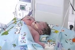 Bebé de duas cabeças nasceu no Uzebequistão