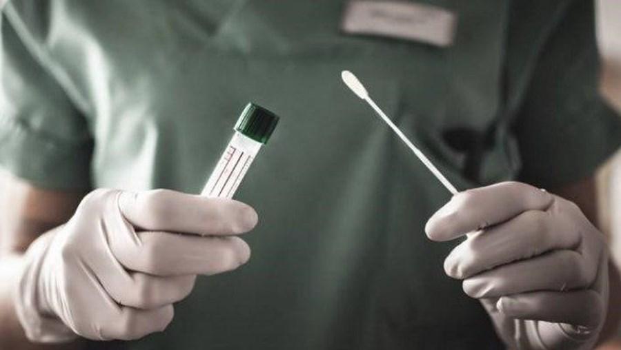 teste serológico coronavirus covid