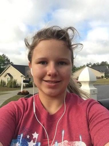 Menina de 15 anos em coma após ser atacada por dois cãos que lhe arrancaram o couro cabeludo