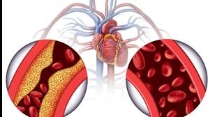 Doença coronária: o que é e como se trata