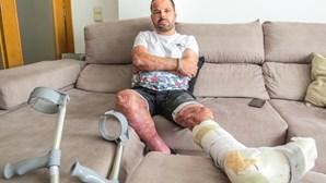 """""""Senti o corpo a fritar"""": Militar da GNR com 60% do corpo queimado relata drama vivido em incêndio"""