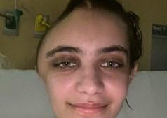 Annabel Sen ficou com o crânio deformado