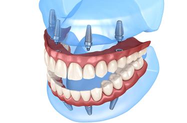 Perda de dentes e falta de osso: implantes e dentes fixos em casos extremos