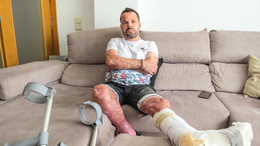 Militar da GNR relata drama vivido em incêndio que o deixou com 60% do corpo queimado
