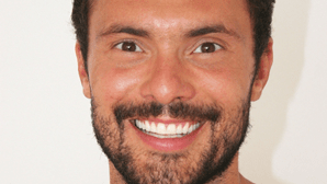 Ator Adriano Toloza faz tratamento para a queda de cabelo