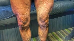 Ciclista da Volta a Espanha partilha imagem impressionante das pernas nas redes sociais