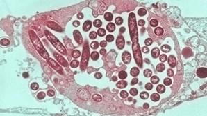 Legionella detetada em pavilhão fecha escola em Matosinhos
