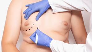 Ginecomastia: o aumento da mama no homem