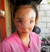 Mary Ann Regacho ficou com uma infeção depois de espremer uma borbulha