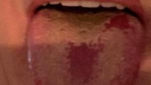 Manchas na língua? Especialista alerta para novo sintoma da Covid-19