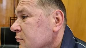 Cidadão ucraniano que disse ter sido agredido pela PSP foi traído por imagens de videovigilância