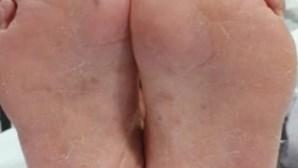 Alterações na boca, mãos e pés identificados como novos sintomas da Covid-19, diz estudo