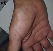 Alterações nas mãos