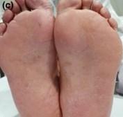 Alterações nos pés