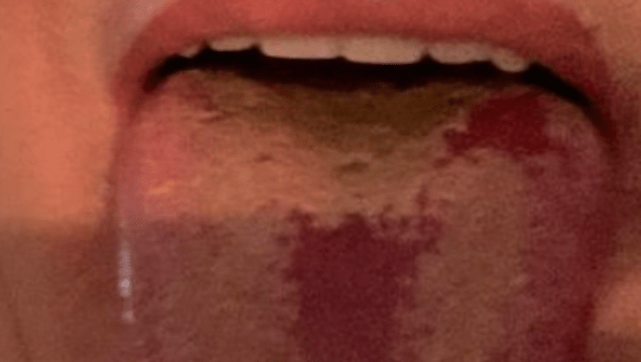 'Língua Covid', o alerta dos especialiistas para o novo sintoma da infeção