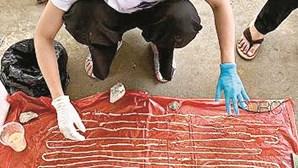 Homem descobre que tinha ténia com 18 metros no intestino