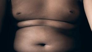 Menina guineense de 4 anos tem 39 quilos e corre risco de vida