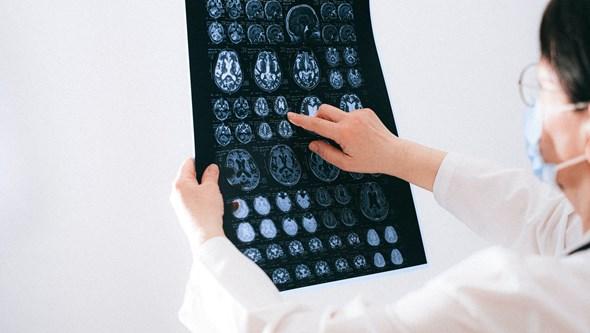 E se pudesse reiniciar o cérebro? Os conselhos de um neurologista