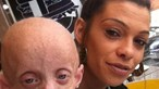 Jovem com doença de 'Benjamin Button' morre aos 18 anos em corpo de 144