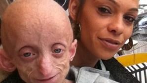 """Jovem com doença de """"Benjamin Button"""" morre aos 18 anos em corpo de 144"""