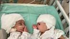 Cirurgia rara separa gémeas siamesas unidas pela cabeça em Israel