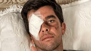 Lesão na vista do cavaleiro João Moura Jr. inspira cuidados