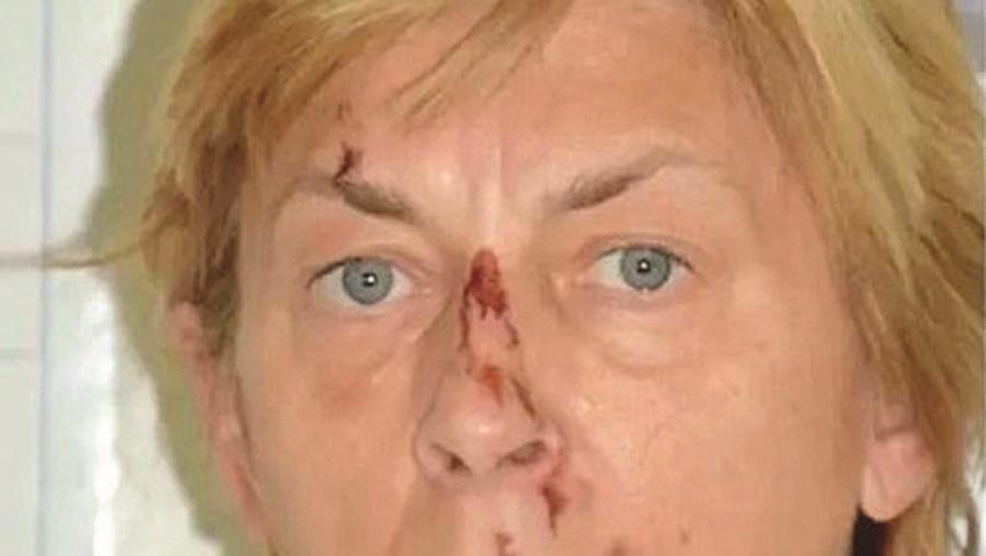 Mulher amnésica encontrada em zona remota na Croácia