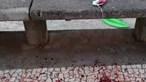 Jovem agredido à facada em noite violenta no Funchal