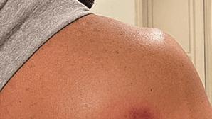 Cinco feridos com balas de tinta em Lisboa e Cascais. Kapinha entre as vítimas