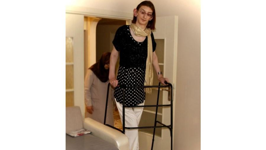 Rumesya Gelgi, a mulher viva mais alta do mundo