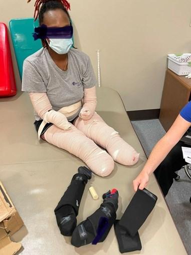Mulher fica sem pernas e braços devido à Covid-19